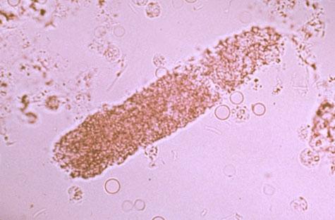 Granular cast in urine Fine Granular Cast In Urine